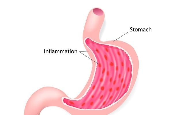 Gastroenteritis is the inflammation of the stomach and intestines (Photo: Shutterstock)